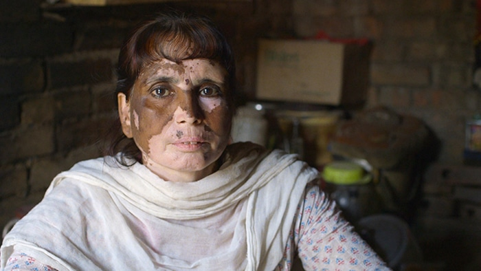 A woman whose face pigment has been burned off by chromium from the leather industry
